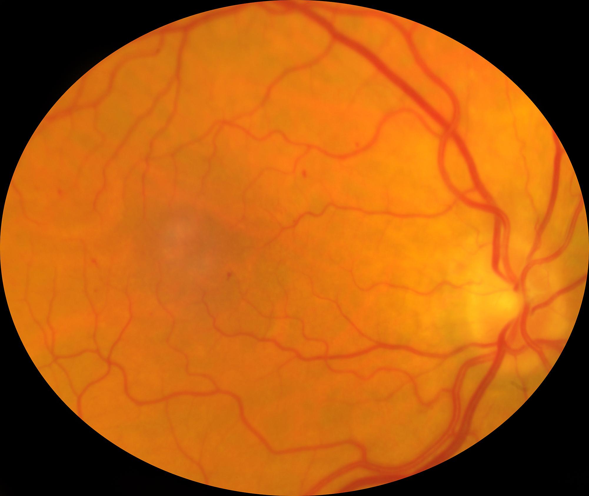 Fondo de un ojo con retinopatía diabética